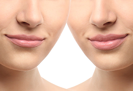 fight against wrinkles